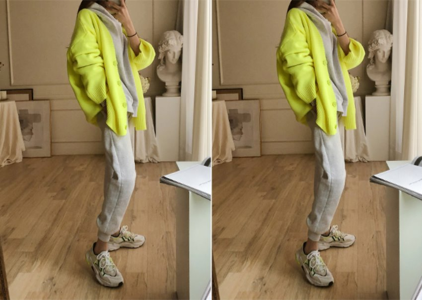 Radi Over Cardigan *[yellow]